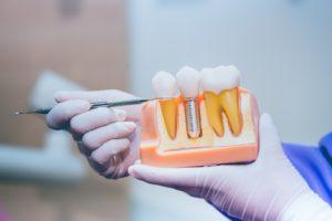 dentist explaining dental implant